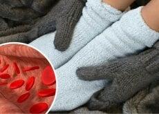 Sind-deine-Gliedmaßen-immer-kalt-und-angeschwollen-Vermeide-dies-mit-Heilmittel-für-die-Durchblutung