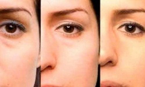 Tipps zur Behandlung von Tränensäcken