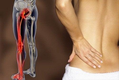Schmerzen am Bein können durch Ischialgieverursacht werden