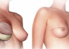 Was-solltest-du-über-die-Brustamputation-wissen