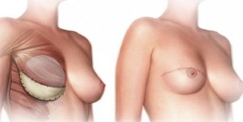 Was solltest du über eine Brustamputation wissen?