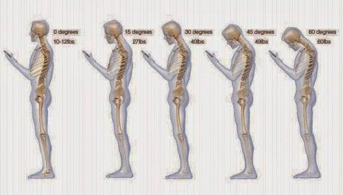 6 Gewohnheiten, die deinem Nacken schaden