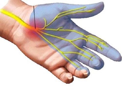 7-heilmittel-um-die-schmerzen-von-karpaltunnelsyndrom-zu-lindern