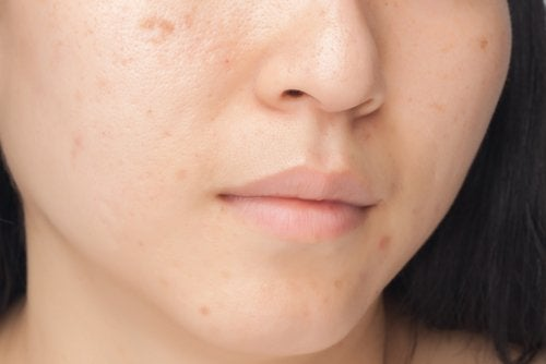Frau- hat Gesichtsflecken