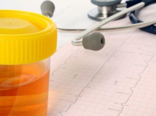 urinprobe bei nierenerkrankungen