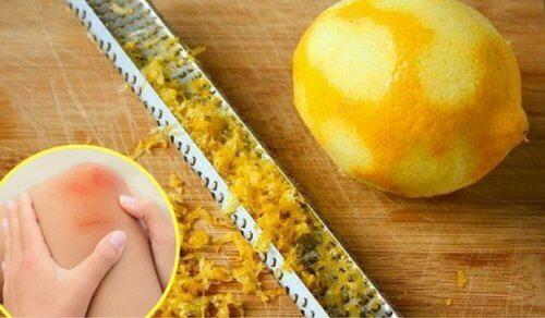Zitronenschale könnte gegen Gelenkschmerzen helfen