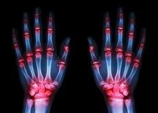arthrose-an-haenden