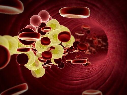 olivenoel-mit-zitrone-gegen-hohes-cholesterin