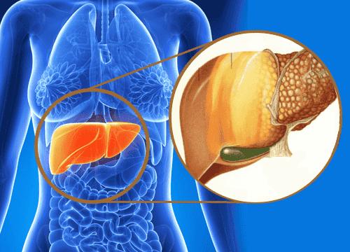 9 Anzeichen für Schadstoffe in der Leber