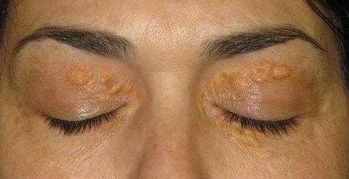 Xanthelasmen: gelbweiße Stellen unter der Haut