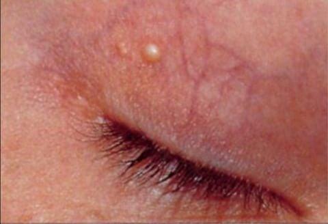 Xanthelasmen sind gelbweiße Stellen unter der Haut