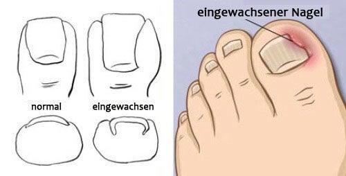 eingewachsene Nägel und andere Nagelveränderungen