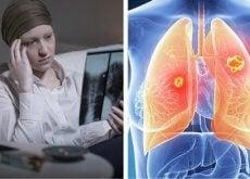 lungenkrebs-bei-frauen-toedlicher
