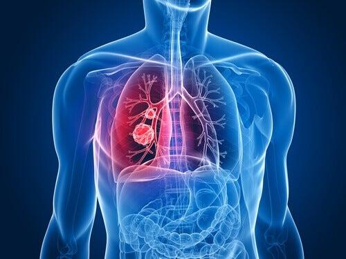 Hinter diesen Symptomen könnte sich Lungenkrebs verstecken!
