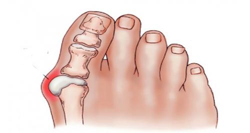 Am fuß schmerzen überbein Fußbeschwerden und