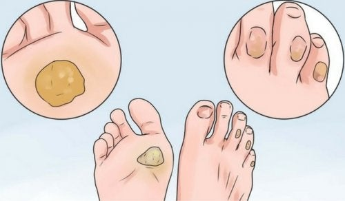 10 Heilmittel gegen Schwielen und Blasen