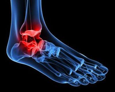 Arthrose im Knöchel: stiller Schmerz bei jedem Schritt