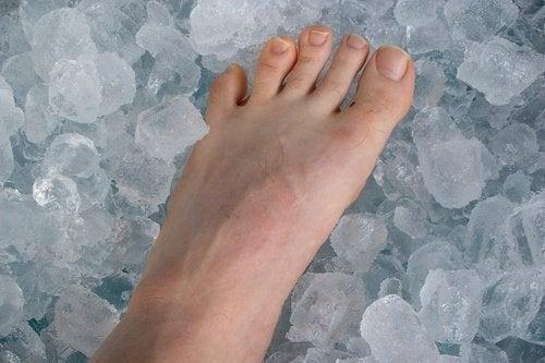 Überbein mit Eis behandeln