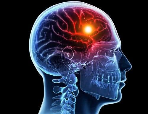 nachts Kopfschmerzen ertragen