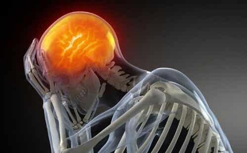 Wann uns Kopfschmerzen Sorgen machen sollten