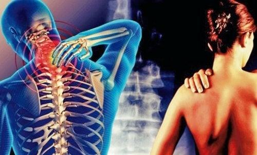 Cervicobrachialgie: das Arm-Schulter-Symptom