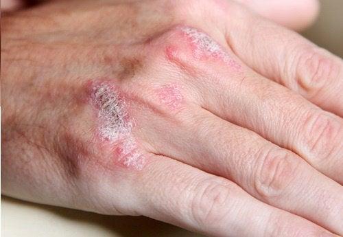 5 Aspekte über Autoimmunkrankheiten, die man kennen sollte