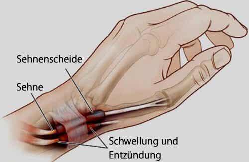Sehnenscheidenentzündung an Händen oder Füßen