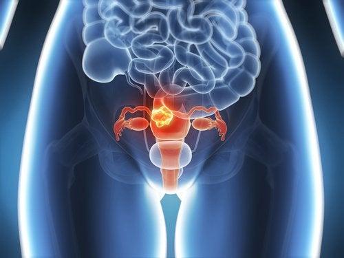 6 Symptome von Gebärmutterhalskrebs die du kennen solltest