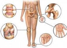 arthritis-gelenke