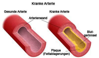 kranke-arterie