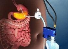 neue-technik-zur-behandlung-von-fettleibigkeit-ohne-operation