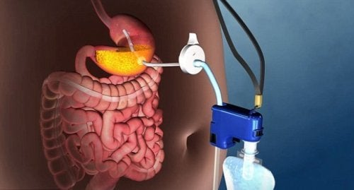 Morbide Adipositas: neue Behandlung ohne Operation