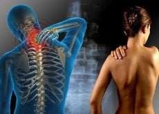 was-solltest-du-ueber-fibromyalgie-wissen