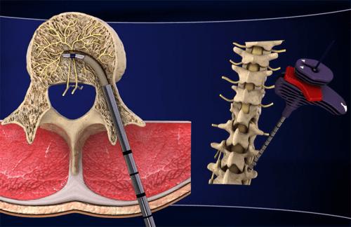Neue Behandlungsmöglichkeit gegen chronische Lumbago