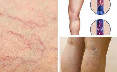 5 Veränderungen für gesündere Blutgefäße in den Beinen