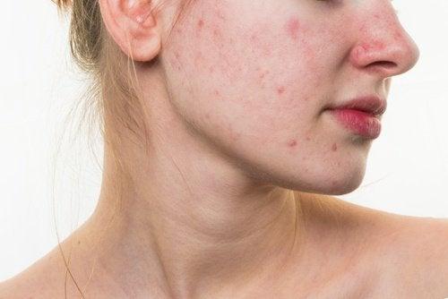 5 Ernährungsgewohnheiten, die deine Gesichtshaut ruinieren können