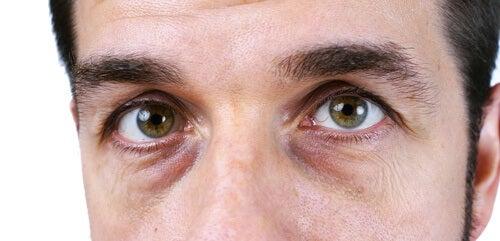 Mann mit Augenringen