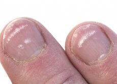 warum-habe-ich-weisse-flecken-an-den-fingernaegeln