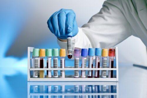 Neue HIV-Behandlung heilt britischen Patienten