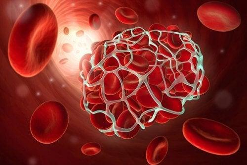 Wie kann man Thrombosen vorbeugen?