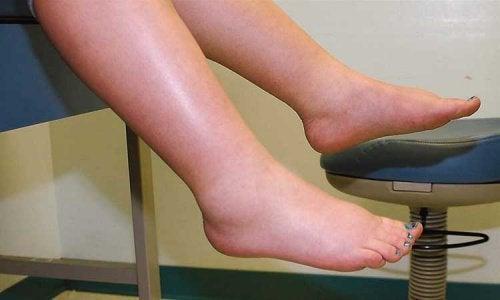 geschwollene-Füße