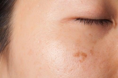 Hautflecken mit Kartoffel behandeln