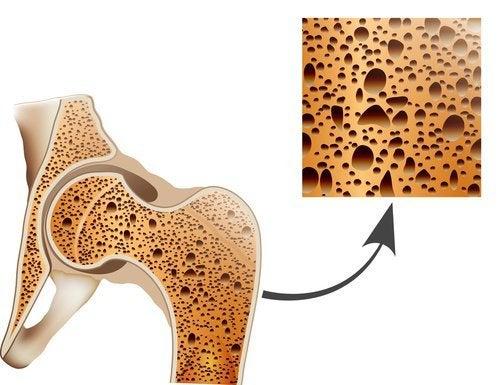Naturheilmittel gegen Osteoporose