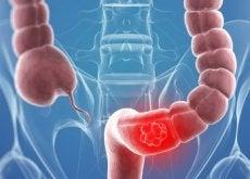 9 natürliche Heilmittel, die eine Darmkrebsbehandlung unterstützen können