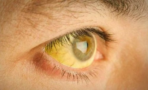 Gelblich verfärbte Lederhaut des Auges