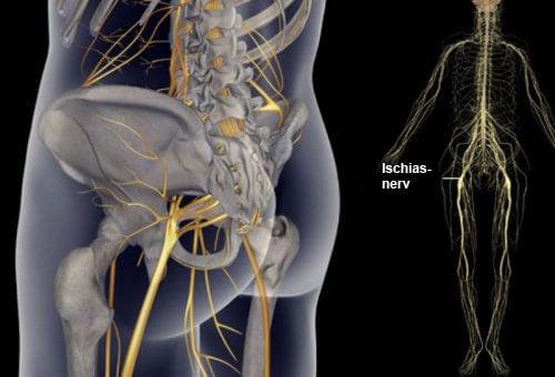 Einfache Übungen zur Linderung von Ischiasschmerzen und Rückenleiden