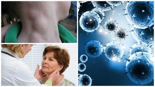 Lymphom: schleichende Krebserkrankung, die bei frühzeitiger Erkennung geheilt werden kann
