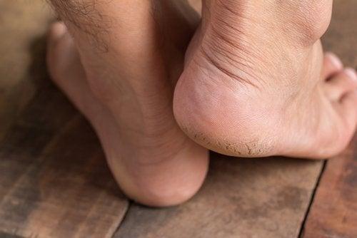 Füße mit Fersensporn