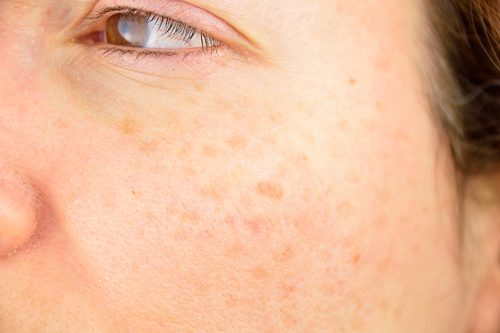 Das kann gegen Hautflecken helfen!