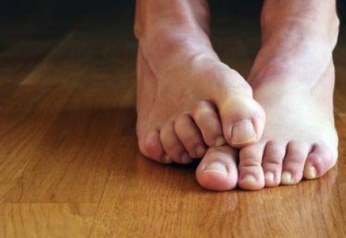 Pilzerkrankungen an den Füßen